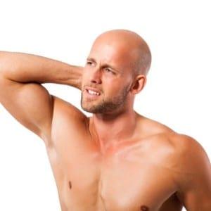 テストステロンが高いと薄毛になる?